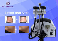 RF Body Slimming Shape Laser Face Lifting Machine 40khz Ultrasonic Frequency