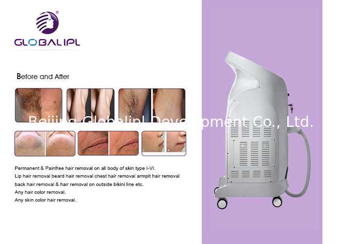 755nm 808nm US08 Hair Removal Equipment , Diode Laser Treatment For Hair Removal