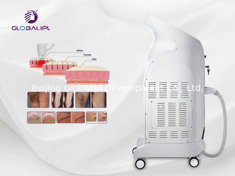 Best sale 755nm  808nm 1064nm three wavelength diode laser hair removal machine